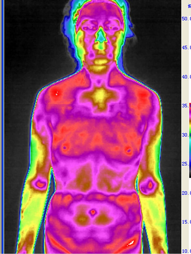气郁体质红外热图