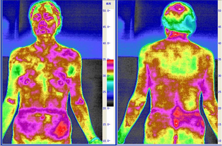 湿热体质红外热图