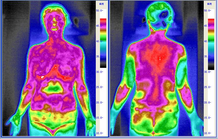 阳虚体质红外热图