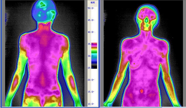 阴虚体质红外热图
